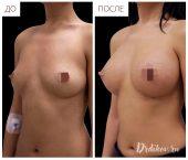Анатомические импланты Sebbin 375 сс. Доступ в складке под грудью. Вид слева