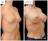 Круглые импланты Sebbin 330 сс. Доступ в складке под грудью