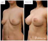 Анатомические импланты Sebbin 375 сс. Доступ в складке под грудью