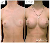 Анатомические импланты Sebbin 375 сс. Вид спереди