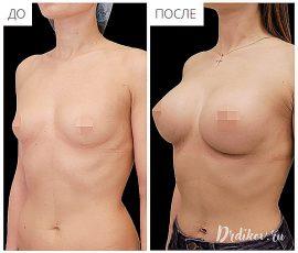 Круглые импланты Sebbin 330 сс. Доступ в складке под грудью. Вид справа