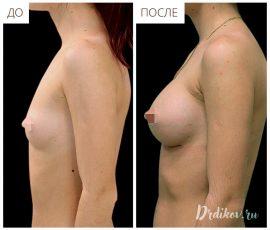 Анатомические импланты Mentor 215 сс. Вид слева