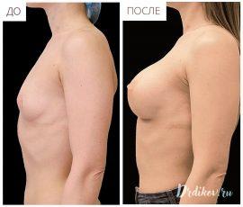 Круглые импланты Sebbin 330 сс. Вид слева