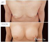 Круглые импланты Sebbin 330 сс. Вид сверху