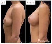 Анатомические импланты Sebbin 375 сс. Вид слева