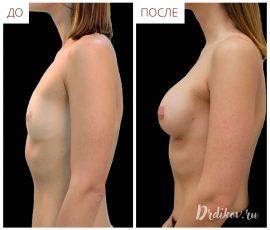 Анатомические импланты 285 сс. Вид слева