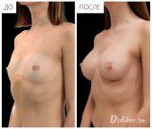 Анатомические импланты 285 сс.. Доступ в складке под грудью