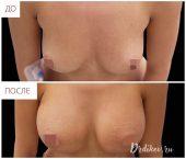 Анатомические импланты Sebbin 375 сс. Вид сверху