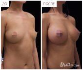 Анатомические импланты Sebbin 375 сс. Доступ в складке под грудью. Вид справа