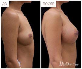 Анатомические импланты Sebbin 375 сс. Вид справа