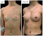 Анатомические импланты Mentor 215 сс. Доступ в складке под грудью