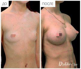 Анатомические импланты Mentor 215 сс. Вид справа