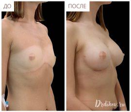 Анатомические импланты 285 сс. Доступ в складке под грудью. Вид справа