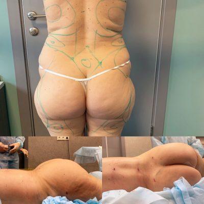 Липосакция областей живота и таза До и После операции
