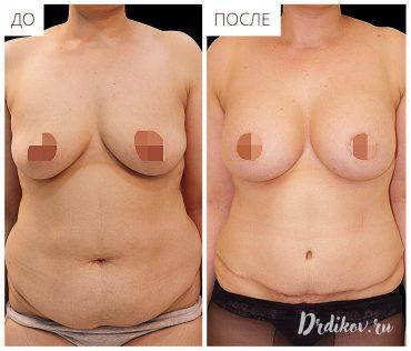 Адбоминопластика живота и липофиллинг груди