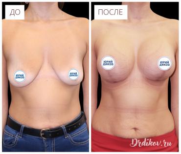 Подтяжка груди после родов