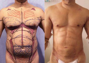 Липосакция мужчины До и После. Опрерация сделана совместно с доктором Alfredo Hoyos на курсе Total Definer