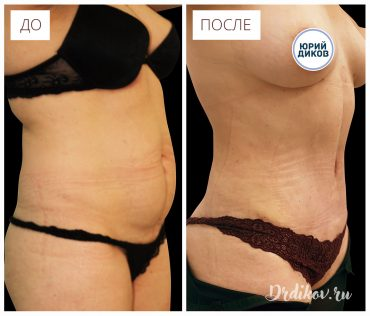 Пластика после родов. Фото До/после операции