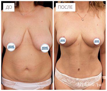 Пластика тела после родов. Фото до-после операции