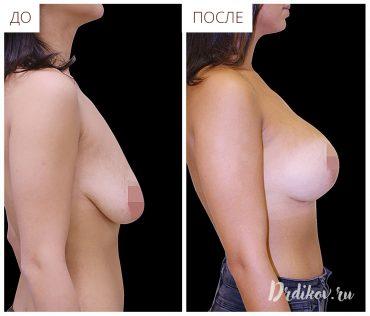Вертикальная подтяжка груди с анатомическими имплантами