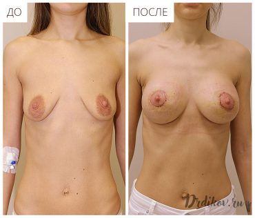 Периареольная пластика груди с круглыми имплантами