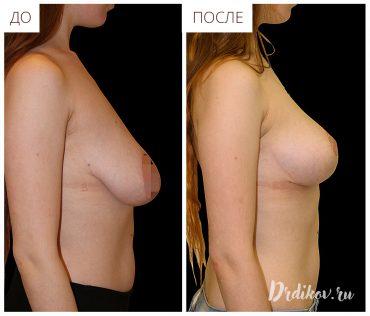 Вертикальная подтяжка груди