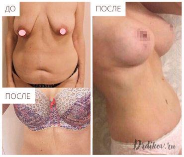 Абдоминопластика, подтяжка груди и липосакция