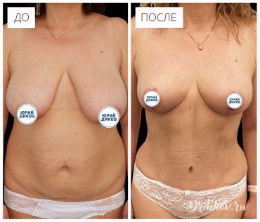 Пластика живота. Фото до-после операции