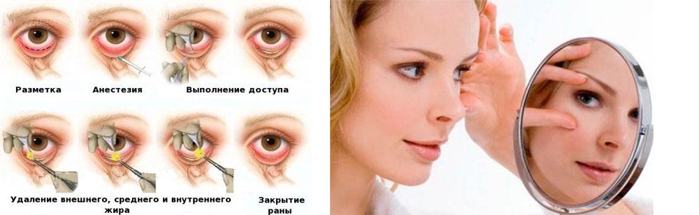 Операция-трансконьюктивальная-блефаропластика