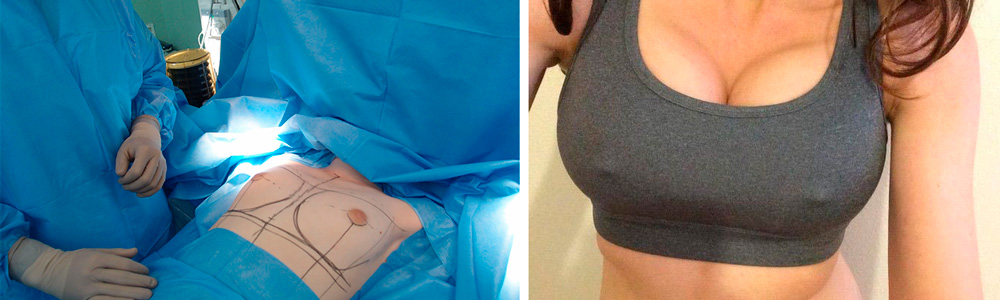 Ход операции по подтяжке груди