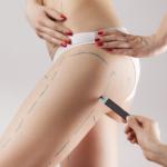 Внутренняя и внешняя подтяжка бедер: методы разреза и шрамы