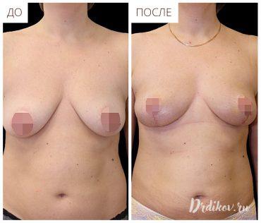 Липофилинг груди с подтяжкой