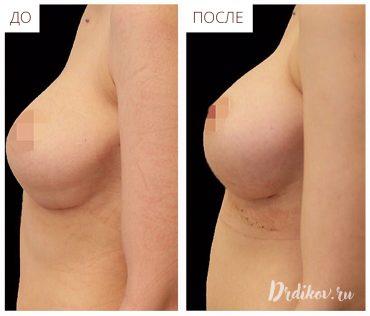 Повторное увеличение груди