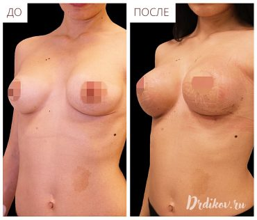 Повторная маммопластика. До и после