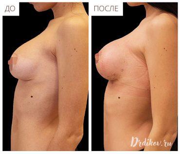 Повторная маммопластика. До и после, вид в профиль