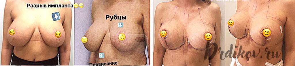Повторная маммопластика. Исправляем порванный имплант