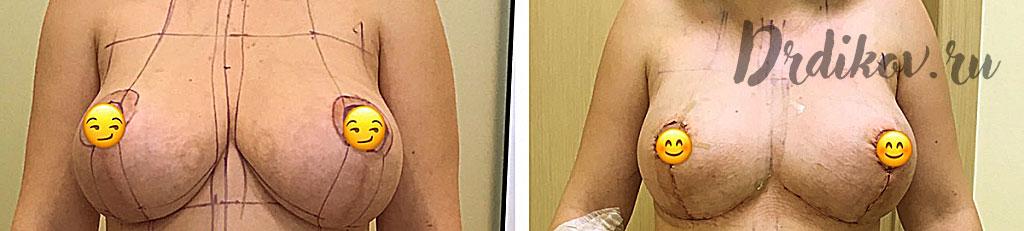 Повторная пластика груди. До и после операции