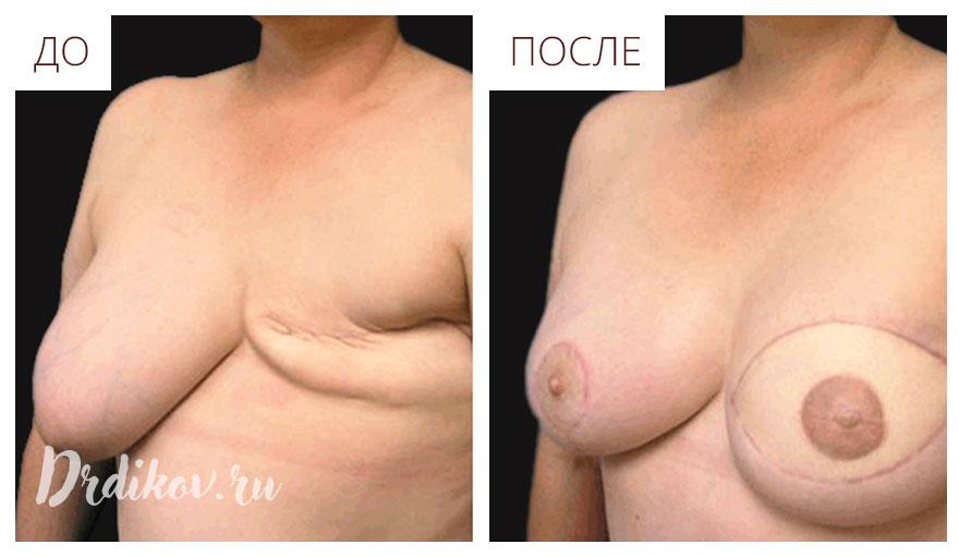 Реконструкция груди до и после операции