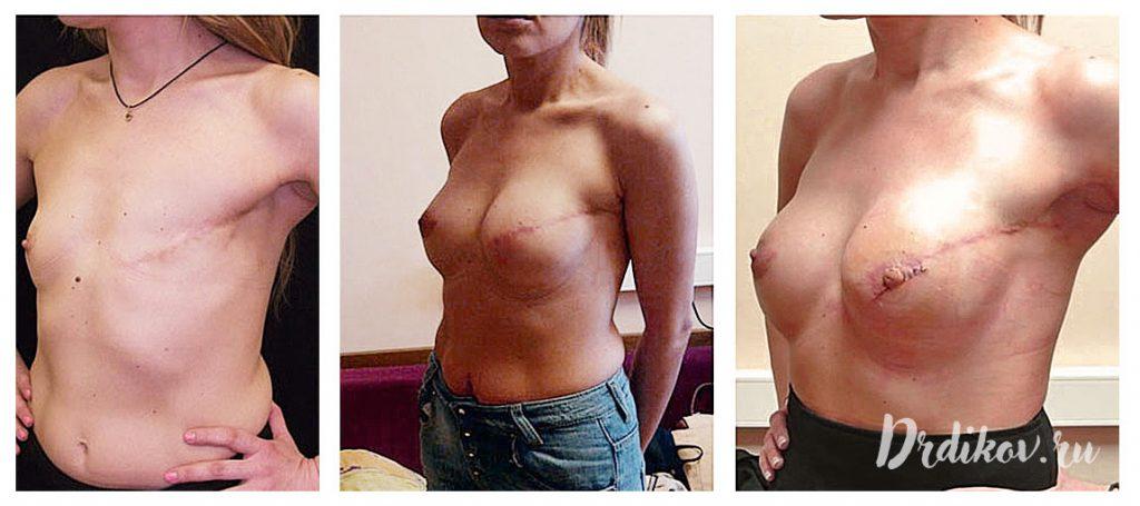 Реконструкция груди пластической операцией