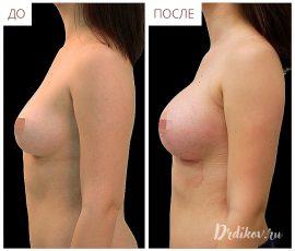 Круглые импланты 330 сс. Вид слева
