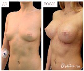 Анатомические импланты 345 сс. Вид слева