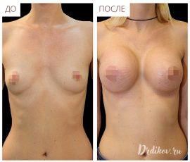 Анатомические импланты Sebbin 330 сс. Вид спереди