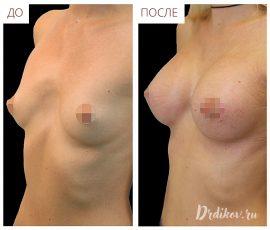 Анатомические импланты Sebbin 330 сс. Вид спереди и слева