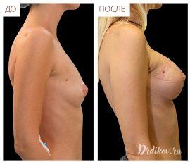 Анатомические импланты Sebbin 330 сс. Вид справа