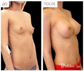 Круглые импланты Sebbin 310 сс. Вид спереди и справа