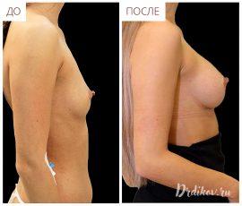 Круглые импланты Sebbin 260 cc. Вид справа