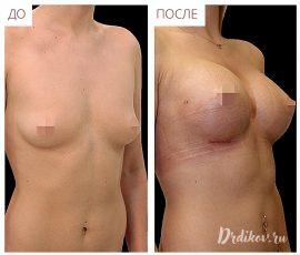 Анатомические импланты 345 сс. Вид справа