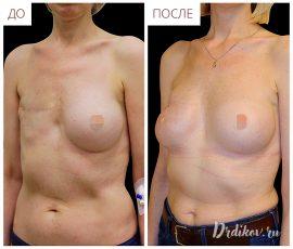 Реконструкция правой груди, вид спереди и слева