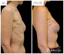 Реконструкция правой груди, вид справа