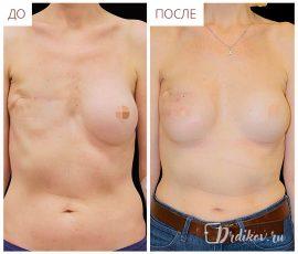 Реконструкция правой груди, вид спереди